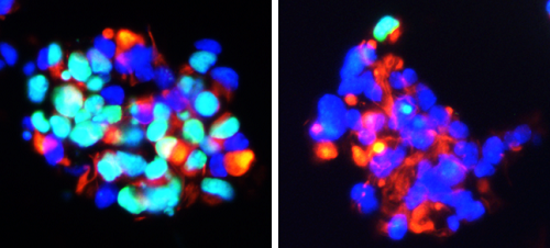 Reduction in EdU labelled proliferating cells (green) in corticosteroid treated neurospheres versus vehicle treated control spheres (left). Nestin (red) and DAPI (blue), photo Rawaa Saleem Al Mayyahi