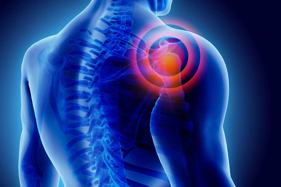 New £2.7 million study to personalise care for people with shoulder pain