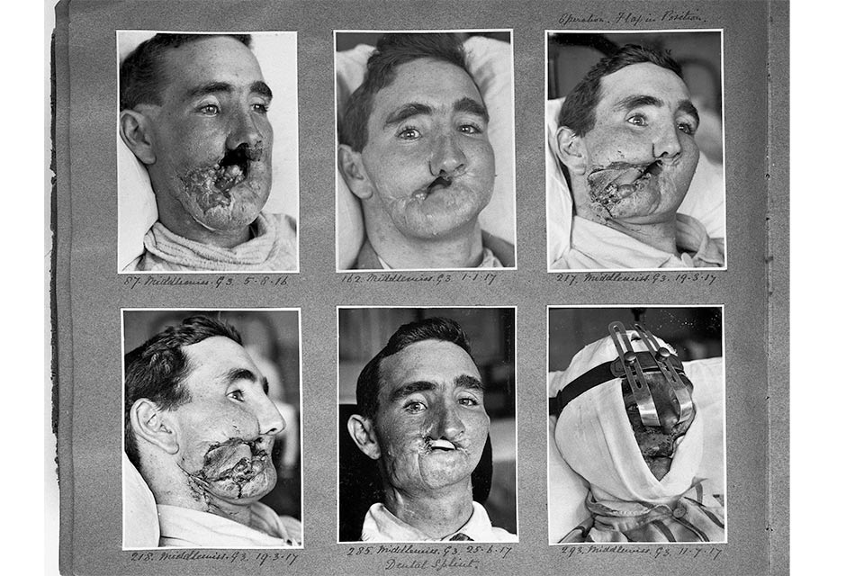 World War I: the birth of plastic surgery and modern anaesthesia